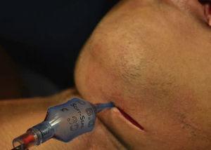Inserção da cânula externamente à cavidade bucal.