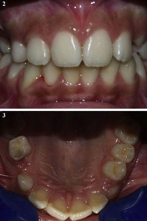 Pre-treatment intra-oral photographs showing the absence of definitive teeth in the maxilla right side.