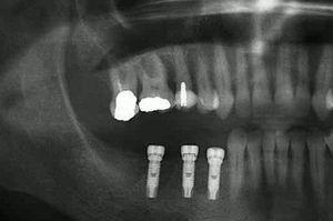Initial radiograph of tooth 16.