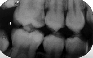 Initial bitewing radiograph of tooth 16. A large mesial decay can be seen.