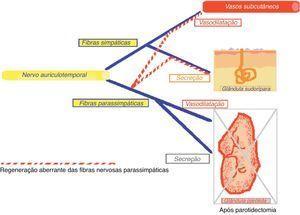 Regeneração aberrante das fibras nervosas após parotidectomia.
