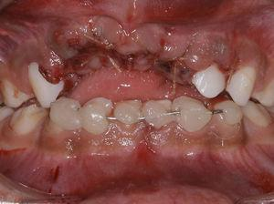 The immediate action was the suture of the lower lip and containment of the lower teeth wired Aciflex 1 and composite resin from right canine to the left.