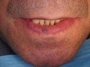 Clinical presentation of a blue colored papule on the lower lip compatible with a venous lake.