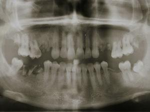 Panoramic radiograph (suggesting communication between the root tips and maxillary sinus).