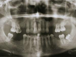 Panoramic radiograph (one-year follow-up – no recurrence of the radicular cyst).