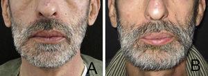 (A) Contorno mandibular antes da excisão tumoral e (B) 3 meses após reconstrução mandibular.