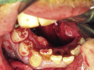 Descolamento do retalho mucoso supraperióstico por lingual.