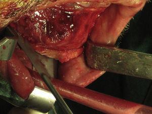 Osteotomia marginal do rebordo basilar com serra recíproca.
