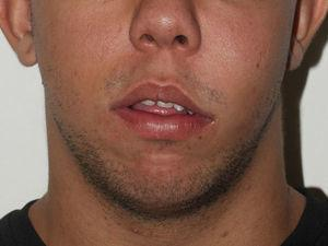 Preoperative appearance of severe swelling in left face.