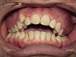 Appearance at two years' follow-up showing intra oral view.