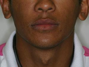 Appearance at one year' follow-up showing symmetry of the face.