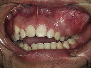 Presence of maxillary swelling and dental malocclusion.