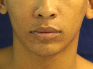 Preoperative view of enlargement of the right midface.