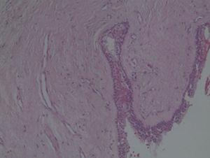Histologic feature of biopsy specimen (Haematoxylin–eosin stain) – 20×.