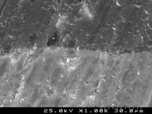 SEM photograph of resin–enamel interfaces with Heliosit® Orthodontic (G4) observed at ×1000.