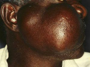 Lesion with a binodular surface, involving the cheek and the parotid region.