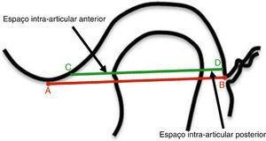 Método utilizado para mensurar os espaços intra‐articulares anterior e posterior32. Ponto A: ponto mais inferior da eminência articular; ponto B: ponto mais superior da fissura timpanoescamosa. Linha AB: liga os pontos A e B. Linha CD: paralela à linha AB, passando pelo ponto mais anterior do côndilo. As setas indicam os espaços intra‐articulares anterior e posterior.