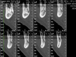 Tomografia axial computorizada após 2 anos, cortes axiais da zona da lesão, demonstrando a diminuição da expansão da cortical e possível regeneração óssea.