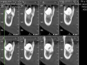 Tomografia axial computorizada inicial, cortes axiais da zona da lesão.