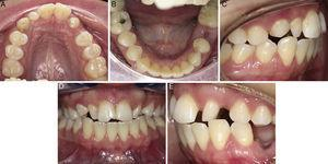 Intraoral photographic status (A) upper occlusal, (B) lower occlusal, (C) right side, (D) front side, (E) left side.