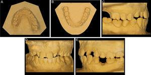 Dental casts (A) upper occlusal, (B) lower occlusal, (C) right side, (D) front side, (E) left side.