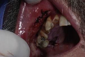 Áreas de biópsia: fundo de sulco e palato duro.
