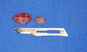 Aspecto macroscópico das peças removidas na biópsia incisional.