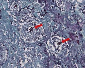 Estruturas birrefringentes compatíveis com o fungo Paracoccidioides brasiliensis, muitas vezes em brotamento (setas vermelhas) (Gomori‐Grocott 40×).
