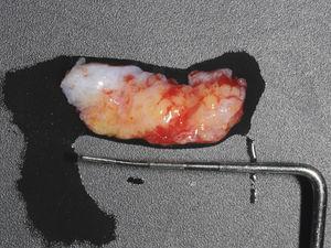 Enxerto de tecido conjuntivo subepitelial.