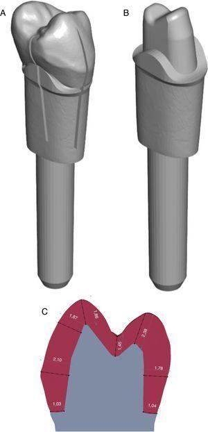 Modelo tipo 1 de dente 15 com guias de orientação de eixo de inserção e da margem cervical (A), respetivo calibrador (B) e relação da preparação dentária do modelo tipo 1 com o dente íntegro (C).