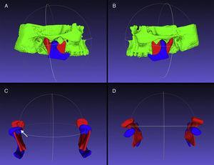 Côndilos mandibulares do lado direito (A) e do lado esquerdo (B), em MIH (vermelho) e MA (azul), alinhados e sobrepostos. Vista frontal dos côndilos mandibulares (C) e alteração morfológica indicativa de osteófito no côndilo direito (seta). Vista superior dos côndilos mandibulares (D).