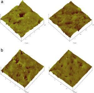 Análise de superfície 3D, à escala de 5 e 20μm, da resina composta Enamel Plus Hri® – (a) esmalte; b) dentina).