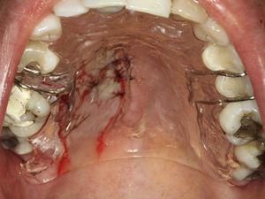 Imagem do dispositivo de acrílico colocado imediatamente após realização da sutura, para proteção da área submetida à cirurgia.