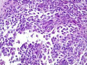 Características histopatológicas da lesão, mostrando células mioepitelioides com aspeto plasmocitoide (HE, 400X).
