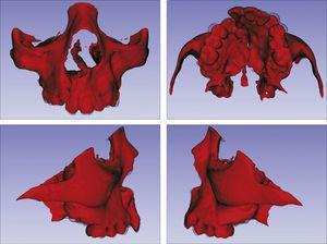Sobreposição com semitransparência dos modelos 3D do tratamento com o aparelho mini‐Hyrax invertido com BTP. Antes da expansão representado por vermelho e após a expansão pela malha fina translúcida. Observa‐se um trespasse da malha preta para vestibular na região dos pré‐molares, indicando expansão concentrada nessa região.