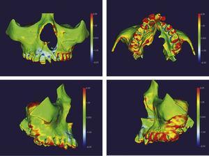 Mapa por código de cores do tratamento com o aparelho em leque. O vermelho presente em molares, pré‐molares, caninos e incisivos indica expansão. O azul na região cervical de alguns dentes indica uma possível deflexão decorrida devido à projeção vestibular desses dentes.