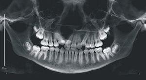 Radiografia panorâmica do paciente B, antes da instalação do aparelho mini‐Hyrax invertido com BTP.