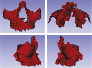 Sobreposição com semitransparência dos modelos 3D do tratamento com o aparelho em leque. Antes da expansão representado por vermelho e após a expansão pela malha fina translúcida. Observa‐se um trespasse da malha preta para vestibular em molares, pré‐molares e canino, indicando que houve expansão em toda essa região.