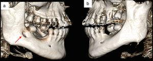 Comparison between right side (a) and left side (b) of the mandible in a 3D reconstruction.