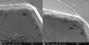 SEM image of the vertex of the implant's external hex in the Ti/Zr assembly after TCML, with 3000× magnification, showing zirconia particles (Z2).