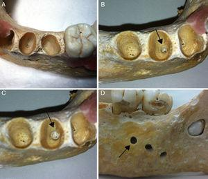 Dried human mandibles (gold standard). Healthy alveolus without preparation (A); arrows indicating an alveolus following the production of a periapical diseases with #6 drill (B), #10 drill (C), and rupture of the buccal cortical bone (D).