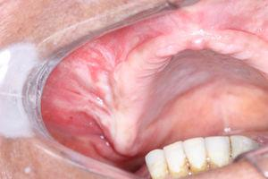 Clinical aspect: swelling on right alveolar ridge.
