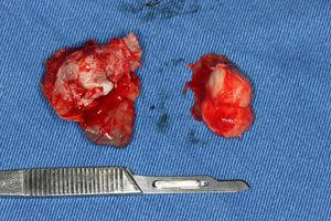 Surgical aspect of the specimen: view of the gross surgical specimen after excisional biopsy.