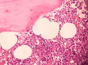 Histologic features: hematopoietic bone marrow associated with fatty cells and trabeculae bone (H&E, ×400).