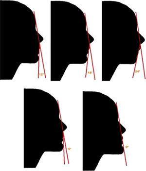 Silhuetas de 12°, 18°, 24°, 6° e 0° de convexidade facial.