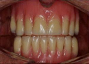 Aparelho duplo com dentes, somente para efeito estético, assentado diretamente sobre o rebordo alveolar.