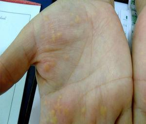 Panel A: skin lesions on the patient's hand (xanthomas palmaris).