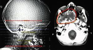 TAC de planeamento da radioterapia 2D onde se observa o envolvimento da região selar no campo irradiado.