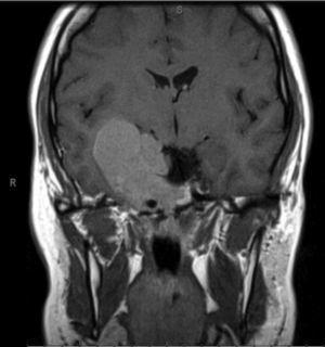 RMN T1 corte coronal. Volumosa lesão centrada na região parasselar direita com invasão do seio cavernoso.