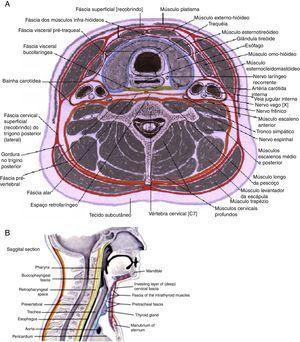 Fáscias cervicais. A: espaços cervicais profundos, esquema de corte axial. B: espaços cervicais profundos, esquema de corte sagital. Fonte: Atlas digital, J. Netter23. As fáscias cervicais e as suas subdivisões determinam a formação de espaços virtuais, conhecidos como espaços cervicais profundos (ECP), normalmente úteis para o deslizamento dos vários constituintes do pescoço, durante os seus movimentos. As fáscias podem ser divididas em fáscia cervical superficial (FCS) e fáscia cervical profunda (FCP). A FCS é constituída por tecido celular subcutâneo que se estende da região zigomática até ao tórax e axilas e envolve, em sua espessura, os músculos da expressão facial e o platisma. Essa fáscia é separada da FCP por um espaço virtual onde há gânglios, nervos e vasos, destacando‐se a veia jugular externa. A FCP é comumente subdividida em 3 camadas: superficial, média e profunda. A camada superficial da FCP (CSFCP) circunda totalmente o conjunto dos elementos constituintes do pescoço e delamina‐se para envolver, bilateralmente, os músculos esternocleidomastoideo, trapézio e as glândulas parótida e submandibular. A camada média da FCP (CMFCP) envolve os músculos pré‐tiroideus, esôfago, faringe, laringe, traqueia e glândula tiroide. É, por esse motivo, subdividida em 2 porções: muscular e visceral. A camada profunda da FCP, da mesma forma que a camada superficial, forma um revestimento completo da região, porém mais profundo, recobrindo os músculos escalenos, elevador da omoplata e esplénio da cabeça. É subdividida em 2 camadas denominadas fáscia pré‐vertebral e fáscia alar. É sobre a CPFCP que se encontram os elementos do feixe vásculo‐nervoso do pescoço e o nervo frénico. Os ECP são espaços formados entre as fáscias cervicais ou suas divisões, e podem ser divididos em espaços supra‐hioideus, infra‐hioideus e espaços localizados ao longo de todo o pescoço. Acima do osso hioide, bilateralmente, temos os seguintes: espaço submandibular, subdividido em espaços submaxilar